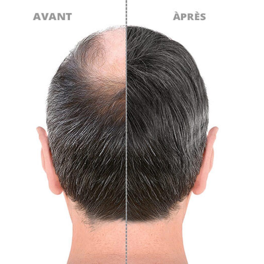greffe-cheveux-avant-apres